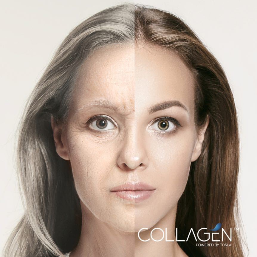 The Best Collagen for Better Health Benefits